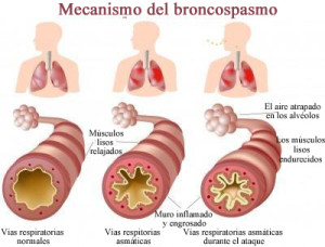 Mecanismo de Broncoespasmo