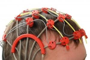 examinacion convulsiones por epilepsia