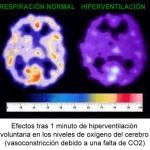 Oxígeno en cerebro