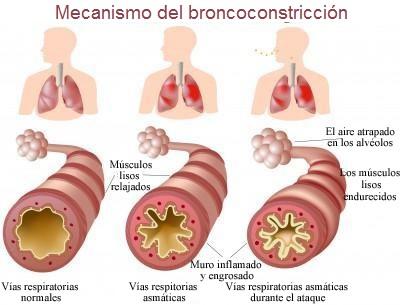 asma-broncoconstriccion-mecanismo