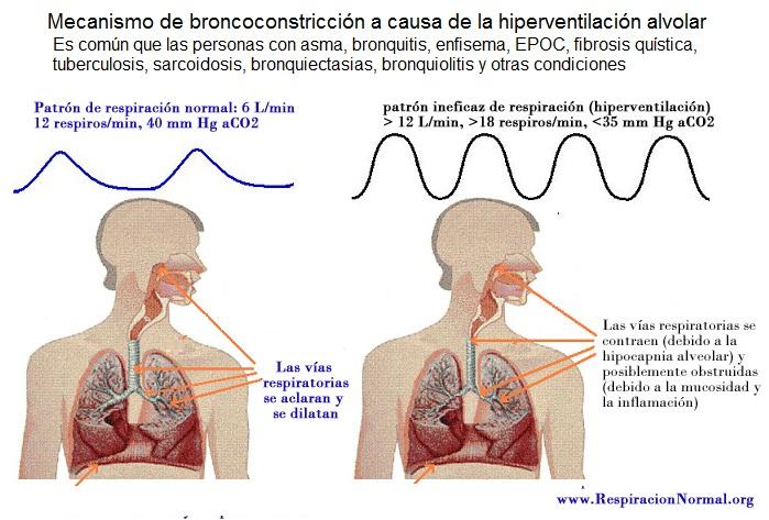 bronchoconstriccion-mecanismo