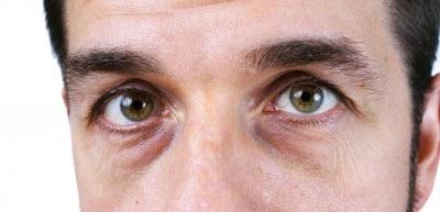 Bolsas debajo de ojos