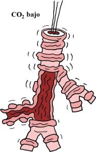 Gráfica de broncoconstricción