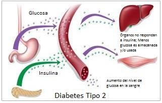 Diabetes tipo 2 diagrama
