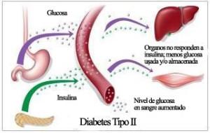 La respiración pesada y la causa de diabetes