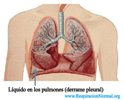 liquido en los pulmones