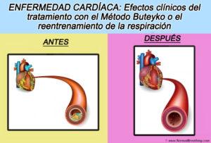 Reentrenamiento de la respiración y el método Buteyko para la cardiopatía isquémica